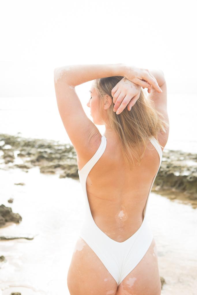 Maui Goddess Project Chelsea Vitiligo Love